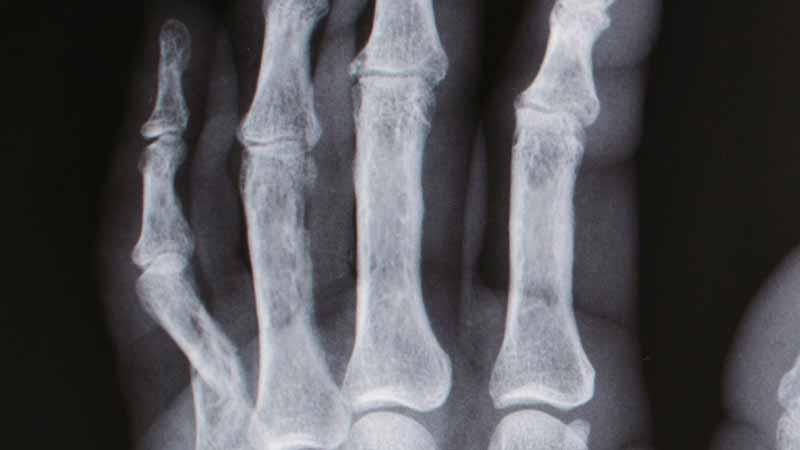 折れ曲がった小指のレントゲン